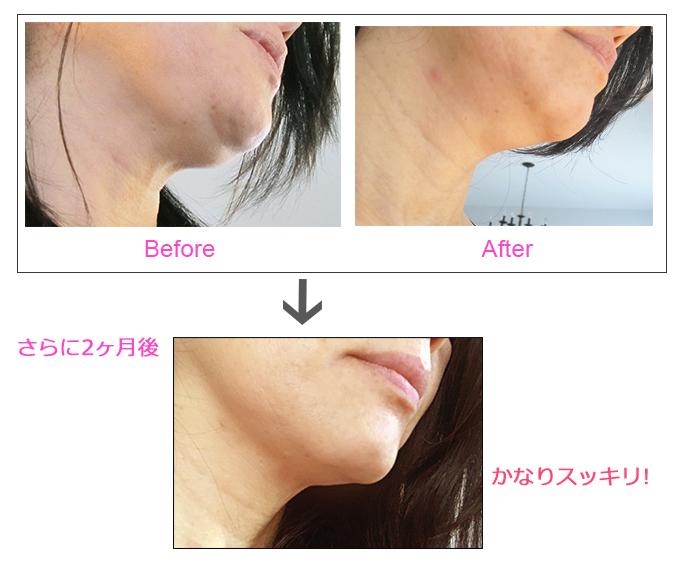美顔器エステナードリフティでたるみケアをする前の写真、さらに2か月後の後の写真をならべて比べている画像