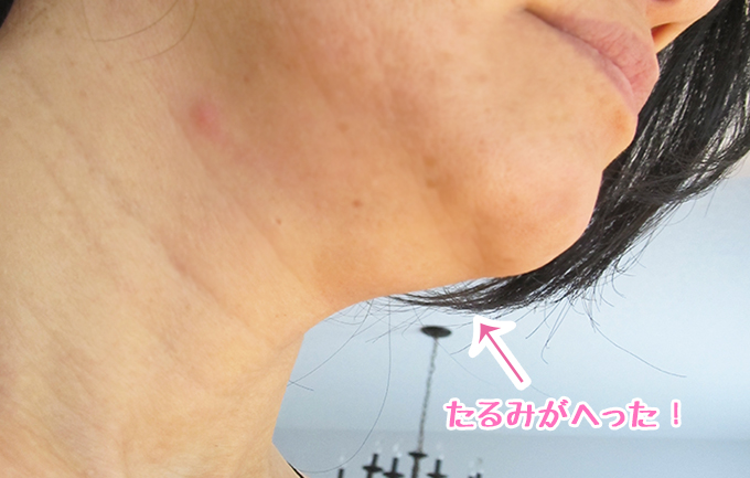 40代女性 美顔器エステナードリフティを2か月間使った後の画像。あごの下のたるみが減っている