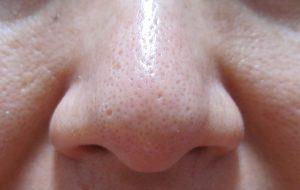 【フィトリフトホットクレンジングジェル】40代毛穴の汚れや角栓落とし 口コミレビュー ホットクレンジングを使う前の自分の鼻の毛穴の画像