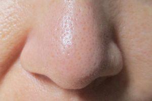 【フィトリフトホットクレンジングジェル】40代毛穴の汚れや角栓落とし 口コミレビュー ホットクレンジングを使いはじめて2週間後の自分の鼻の画像