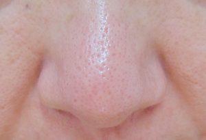 【フィトリフトホットクレンジングジェル】40代毛穴の汚れや角栓落とし 口コミレビュー ホットクレンジングを始めて3週間後の自分の鼻の画像 毛穴がとてもきれいになっている