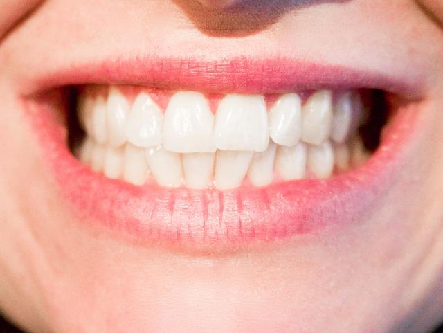 歯 ホワイトニング 格安