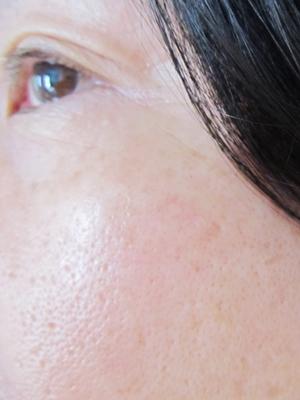 肌の調子 DHC