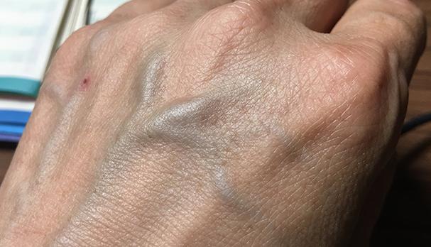 老け手 血管が浮き出た手の甲 対策 クリーム