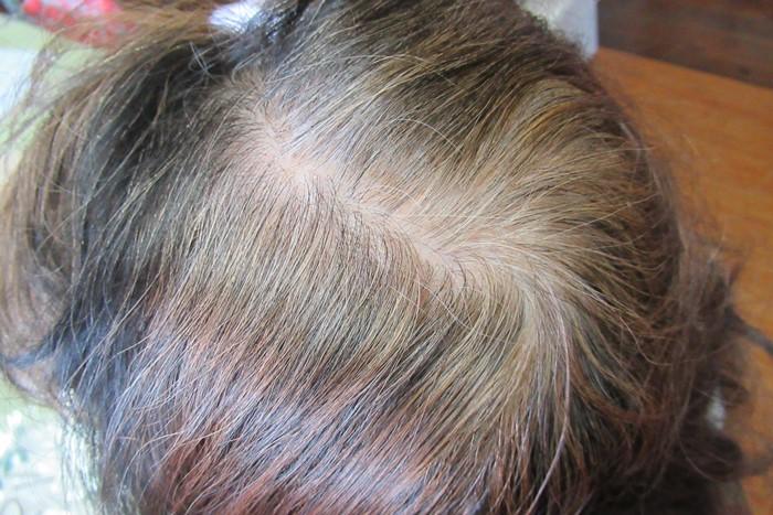 てっぺんが真っ白な、77歳の白髪あたまの写真